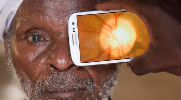 スマホで目の検査画像