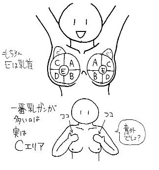 乳がん場所