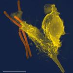 ストレスで白血球も変わる!自律神経と免疫のお話